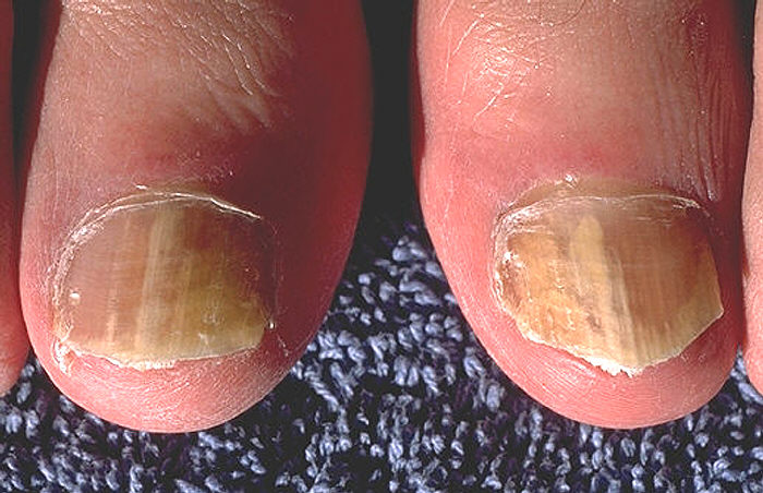 Fungal Nails are unsightly, especially during sandal weather