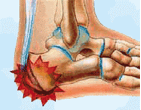 Pediatric Heel Pain